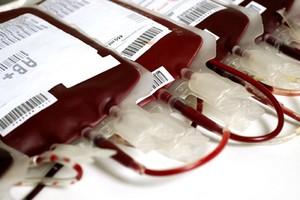 Έρευνα συνδέει την ομάδα αίματος με τις θρομβώσεις